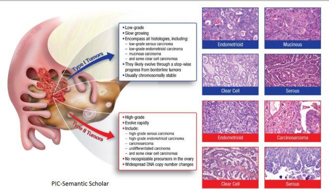 Image result for high grade cancer